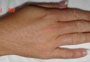 Laser Hair Removal Procedure in McLean, VA