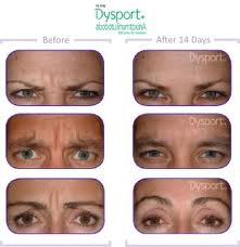 dysport injections
