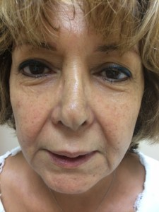 PRP Facelift in McLean, VA